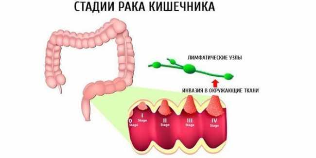 Первые признаки рака кишечника на ранней стадии - как распознать - советы и рекомендации о здоровье на AllMedNews.ru
